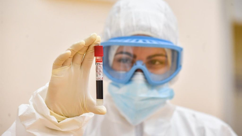 Un médico con una muestra de sangre para un análisis de Covid-19 coronavirus